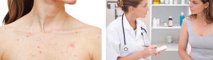 Сыпь в области груди