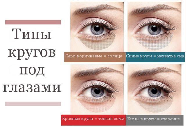 Типы кругов под глазами
