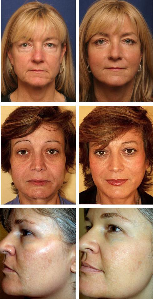 Фото до и после желатиновых масок