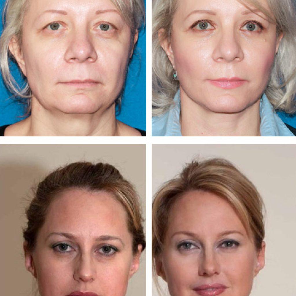 Фото до и после курса терапии