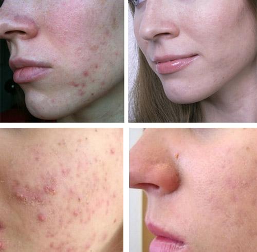 Фото до и после лечения Метрогилом