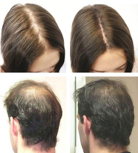 Фото до и после луковых масок