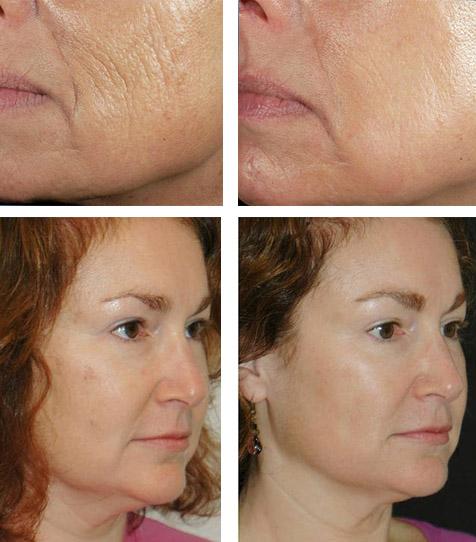 Фото до и после масок