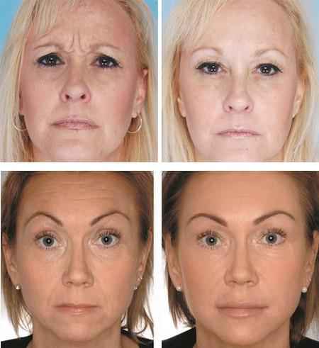 Фото до и после озонотерапии