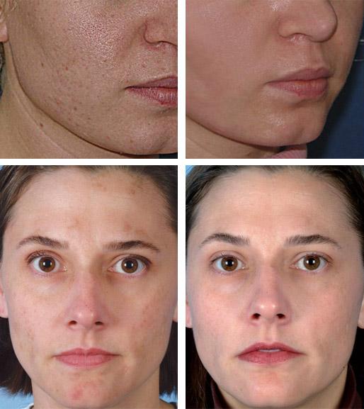 Ультразвуковой пилинг лица: показания, отзывы, плюсы и минусы, фото до и после
