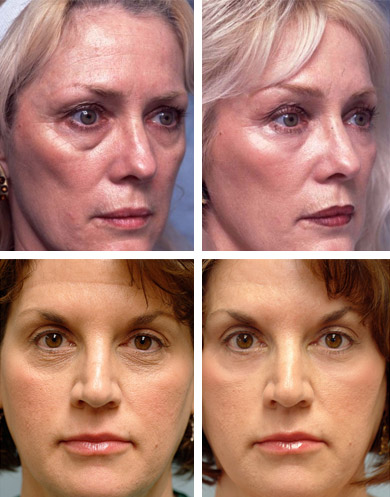 Фото до и после применения мази