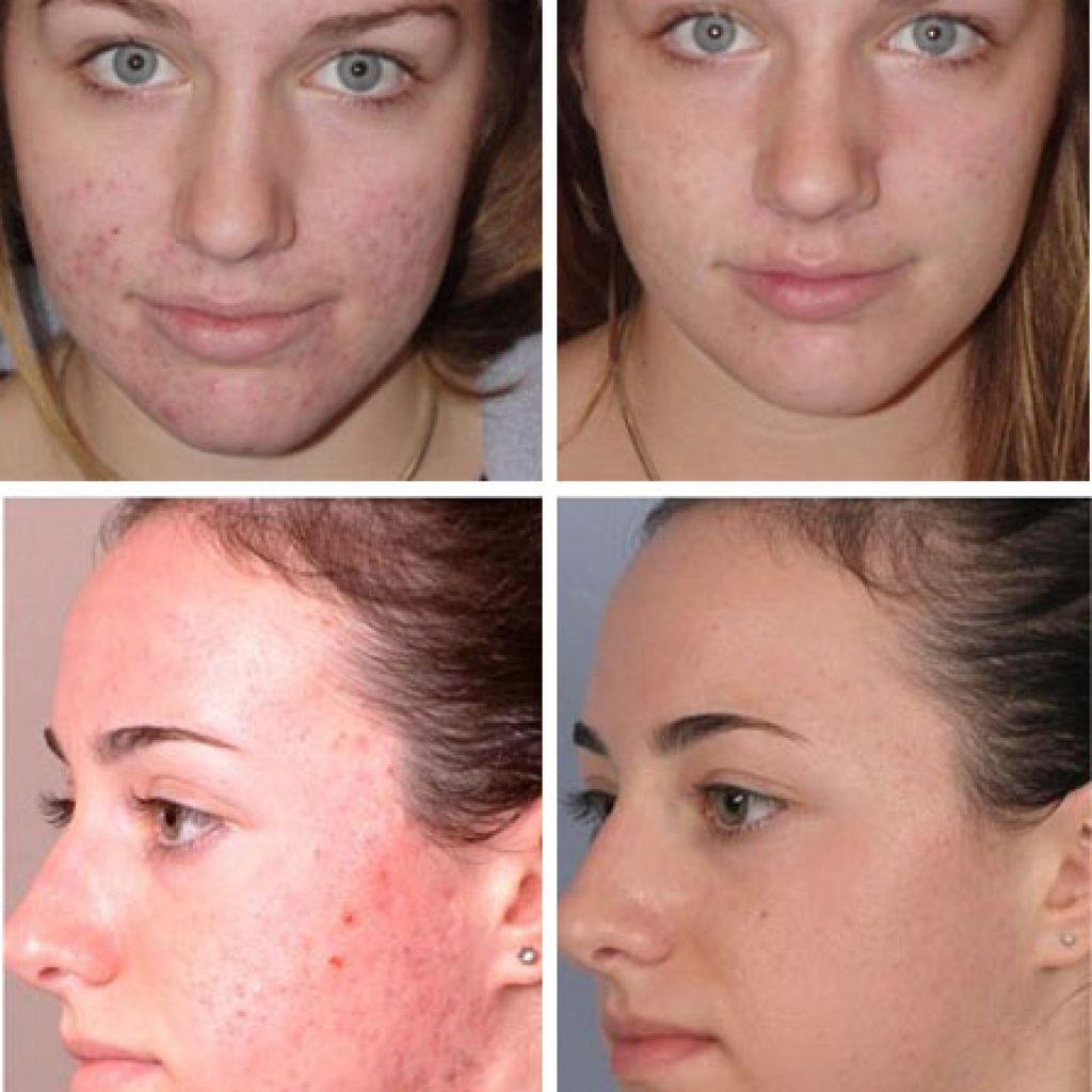 Фото до и после применения мыла