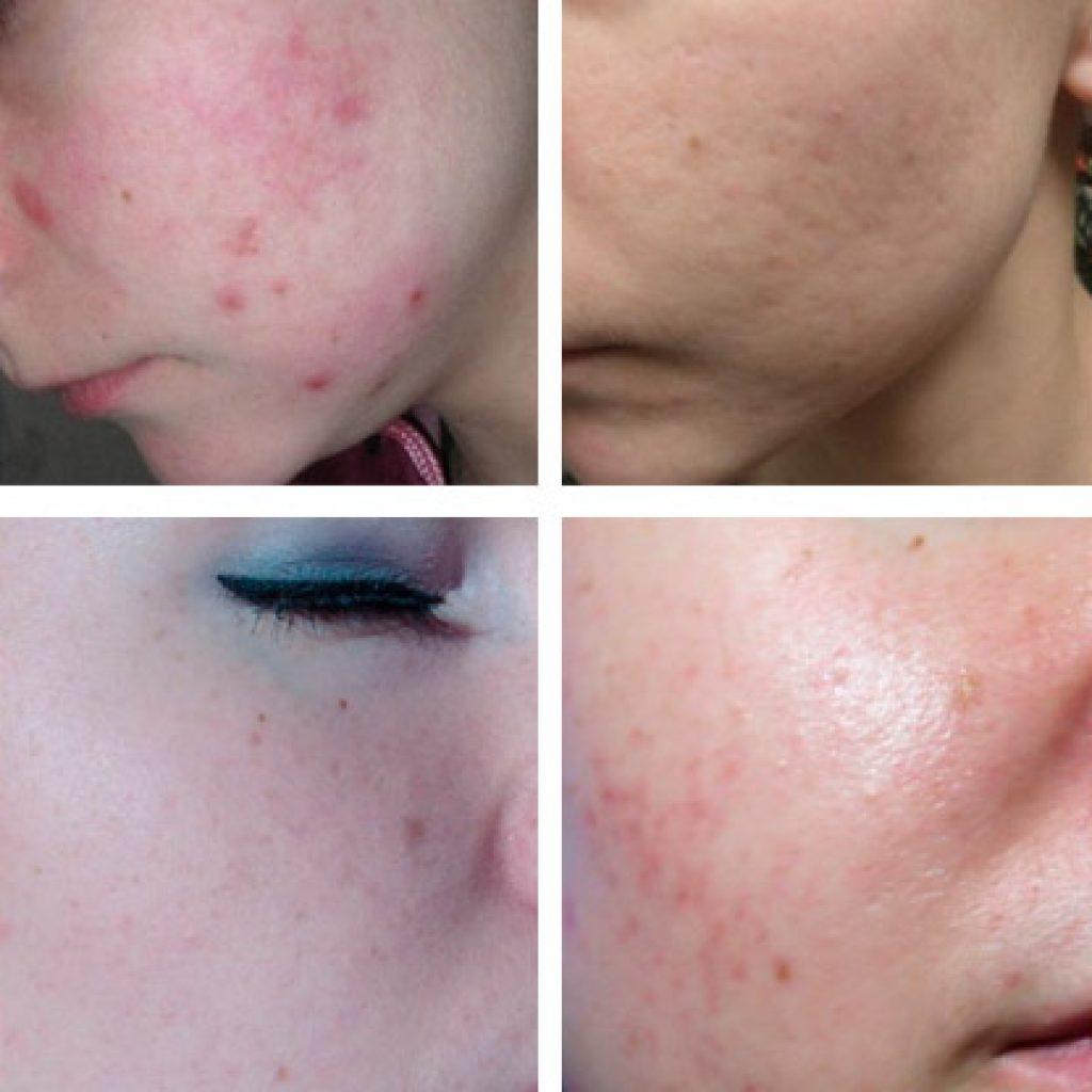 Фото до и после терапии