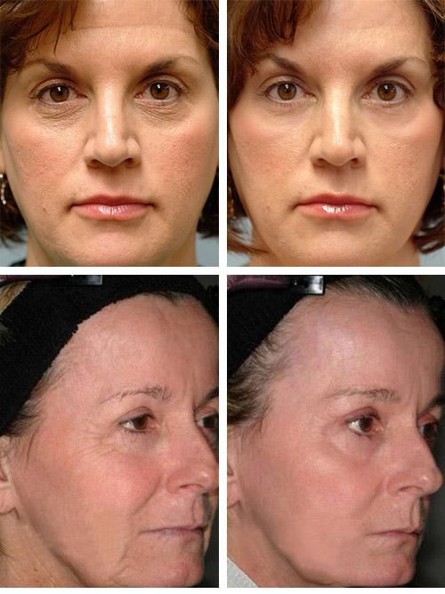 Фото до и после фототермолиза