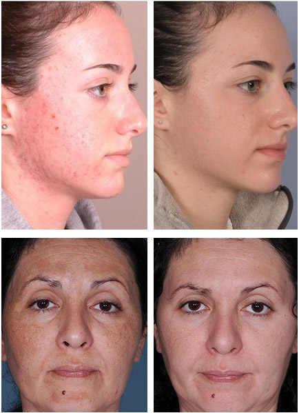 Химический пилинг лица: отзывы, что это такое, противопоказания, фото до и после, цены
