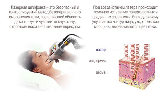 Что такое лазерная шлифовка
