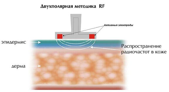 Что такое RF-лифтинг