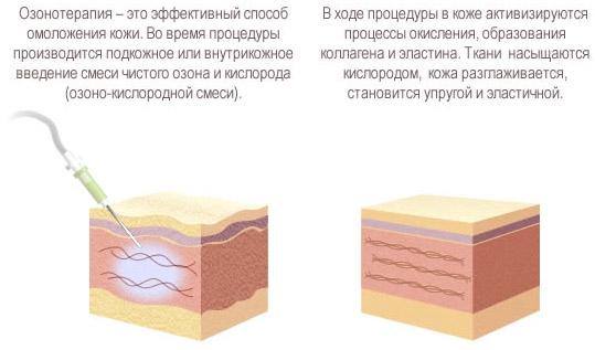 Эффективность озонотерапии