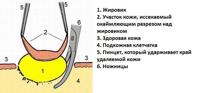Воспаление кутикулы ногтя лечение в домашних условиях