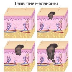 Развитие меланомы