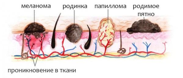 Как отличить бородавку от папилломы