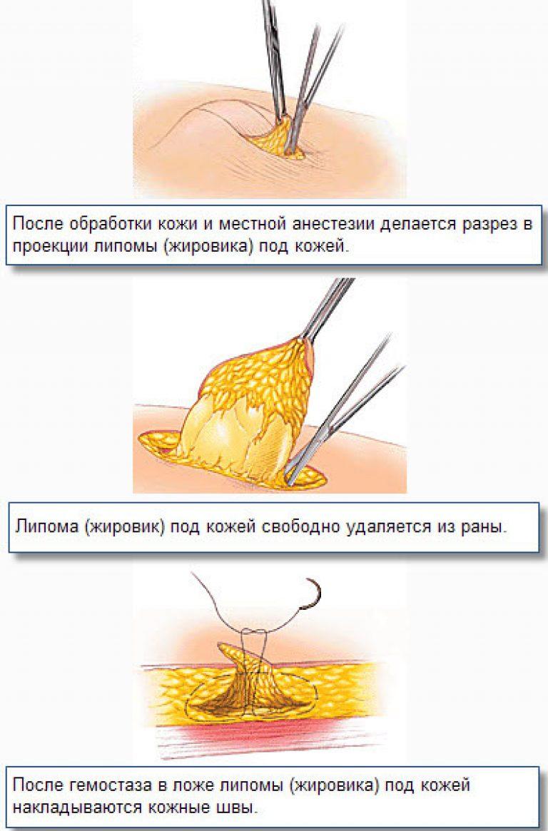 Как убрать жировик на лице в домашних условиях