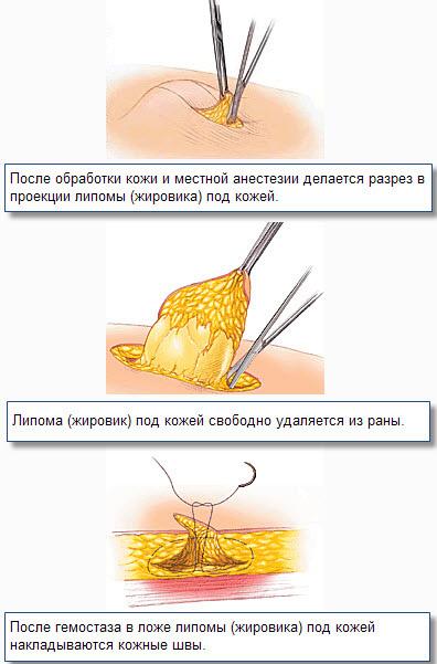 Удаление жировика хирургическим методом