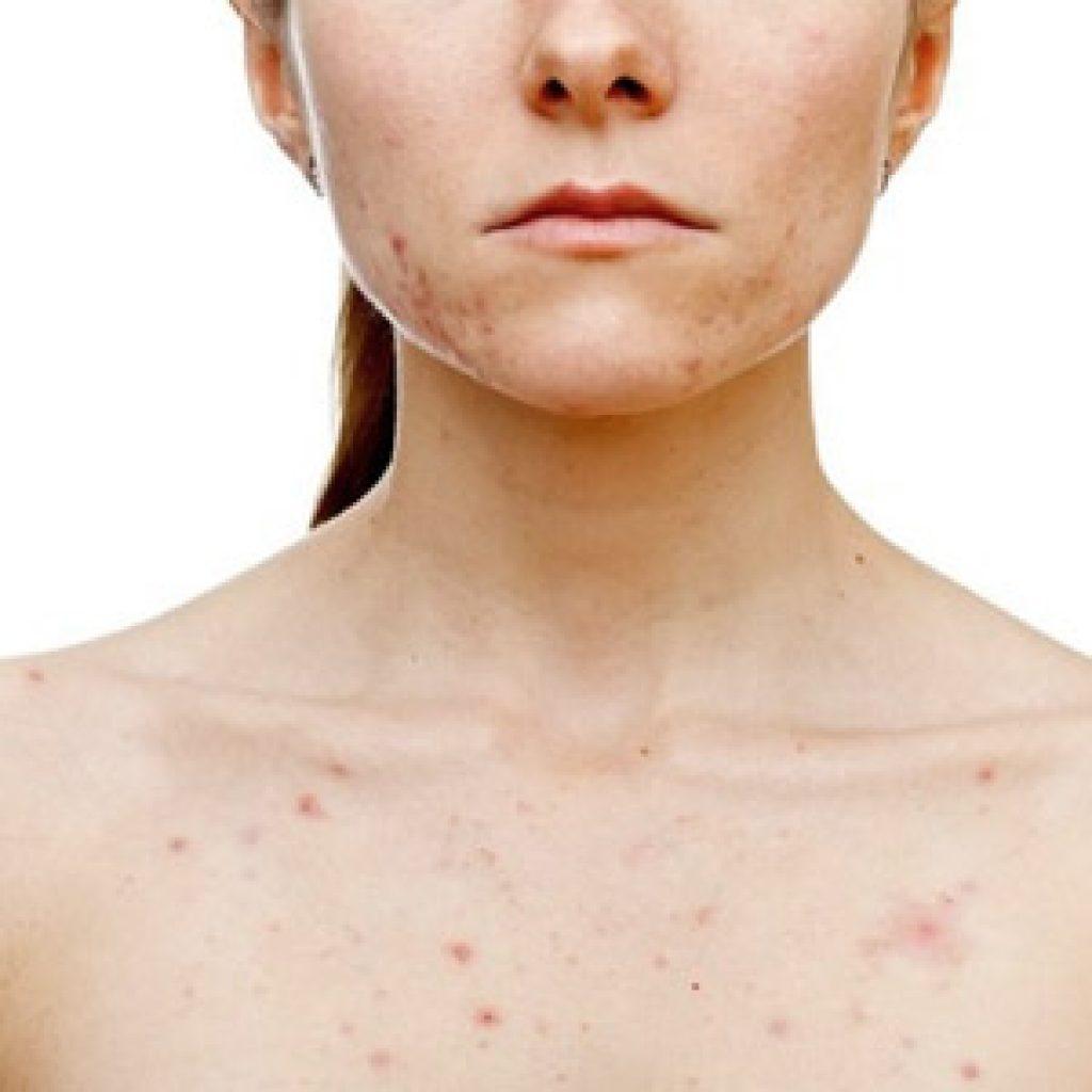 Аллергическая реакция с красными пятнами, которые чешутся