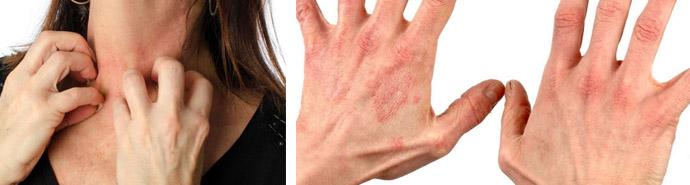 Аллергическая форма дерматита
