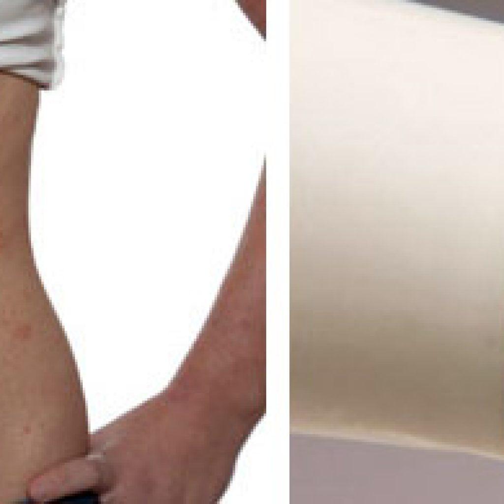 Аллергические высыпания на коже