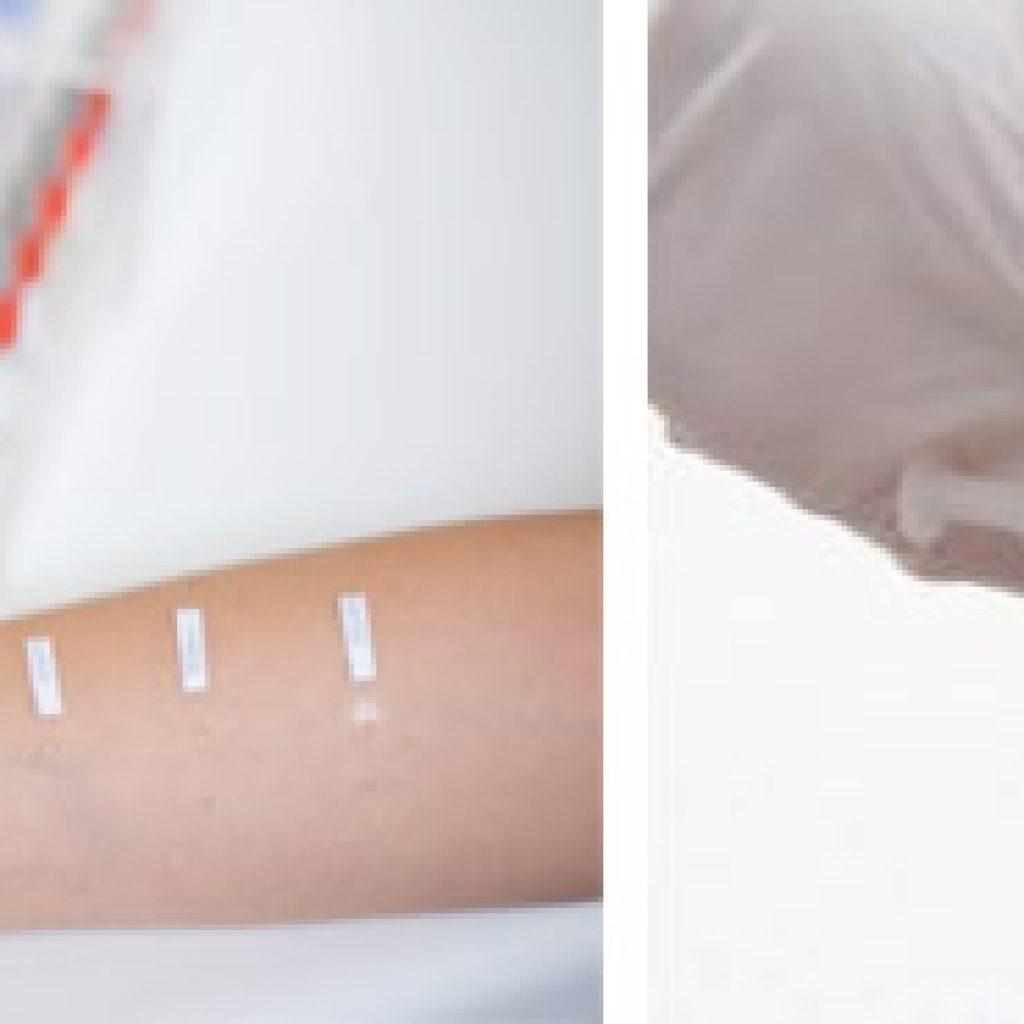 Аллергические тесты
