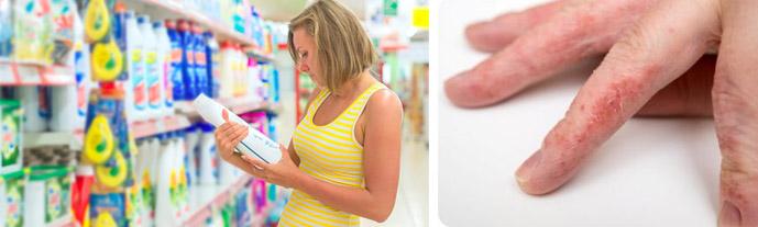 Аллергию на моющие средства