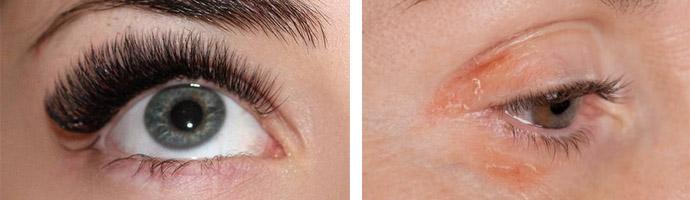 Аллергическая реакция на искусственные ресницы