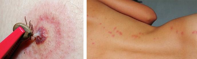 Аллергия после укуса насекомого