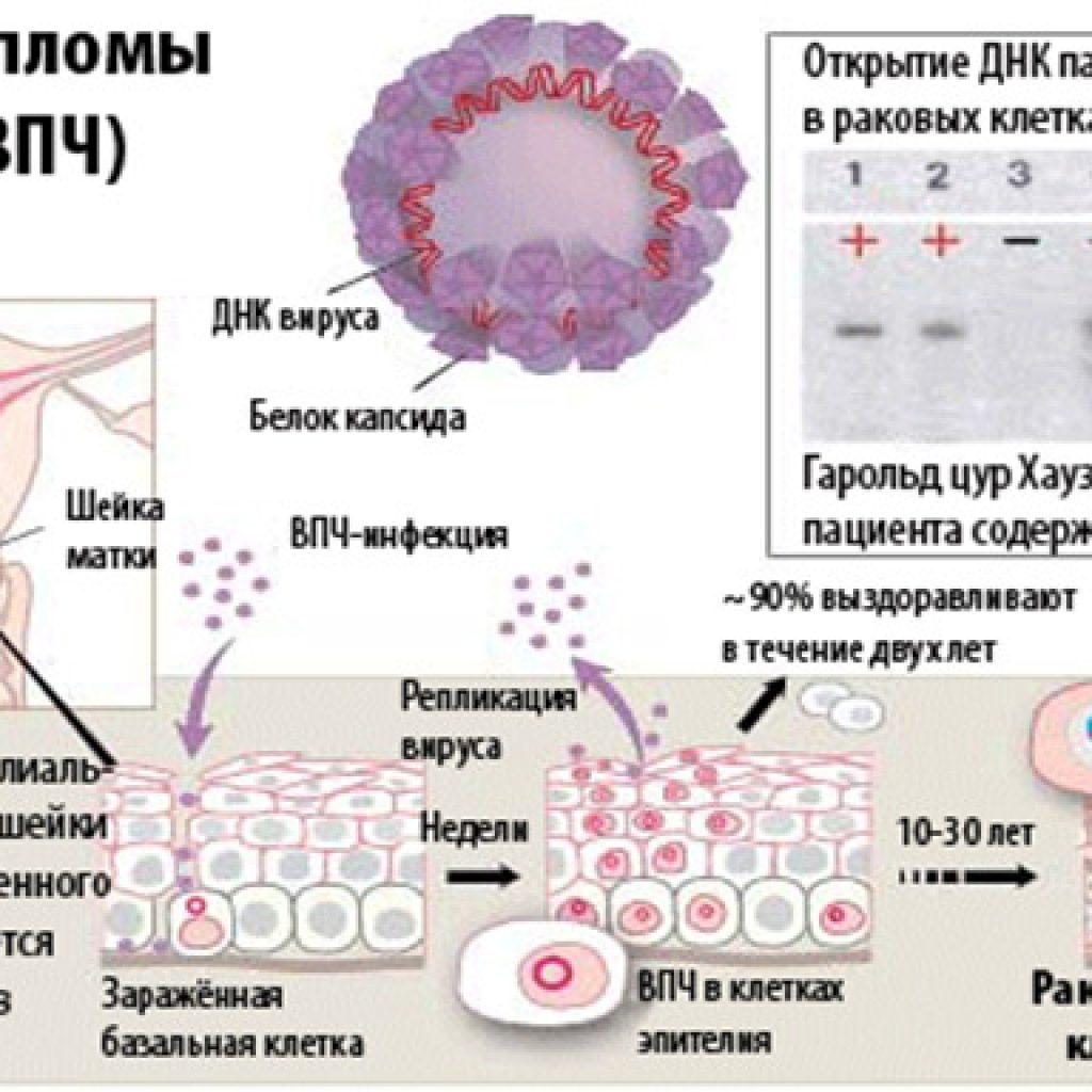 ВПЧ у женщин