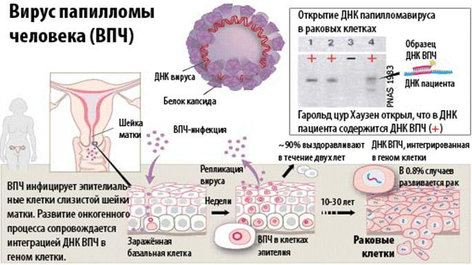 Лекарства от вируса папилломы человека у женщин