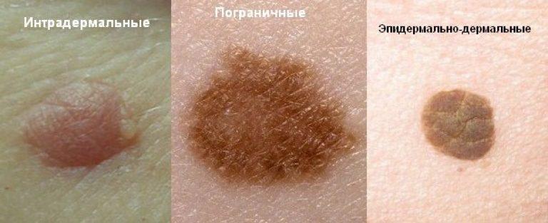 Красная папиллома на коже
