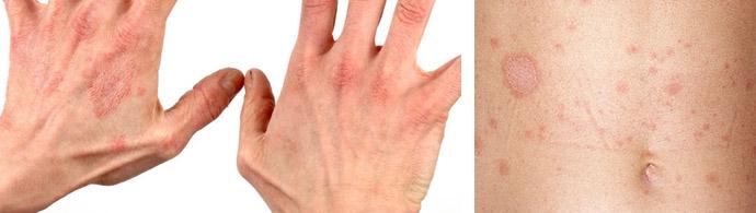 Дерматит аллергического типа