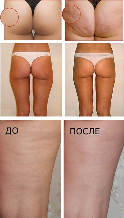 До и после антицеллюлитного массажа