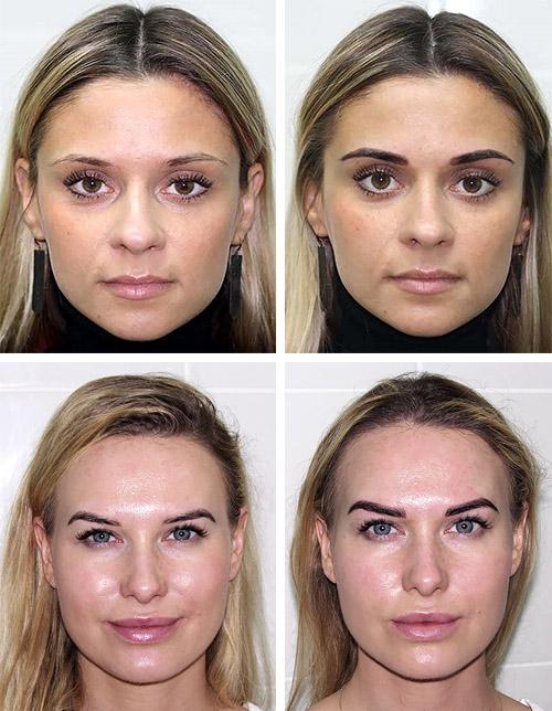 До и после биотатуажа