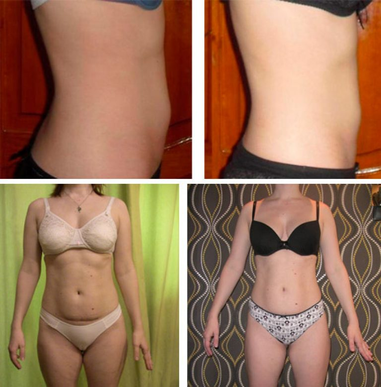 обертывания для живота для похудения отзывы
