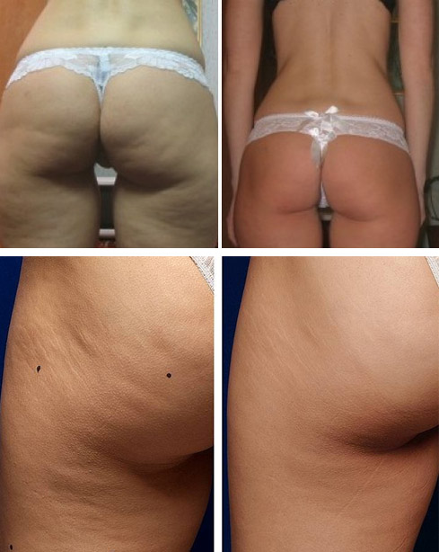 До и после процедур