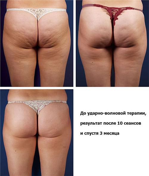 До и после ударно-волновой терапии