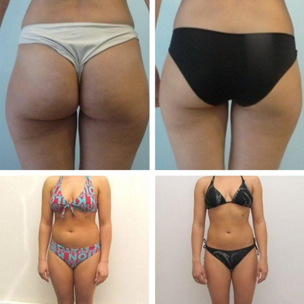До и после шоколадных процедур