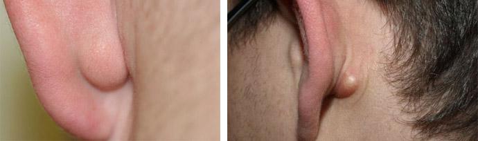 Жировик в области уха