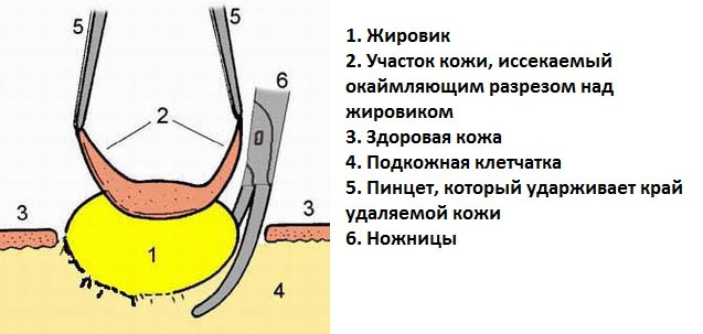 Как удалить жировик на голове