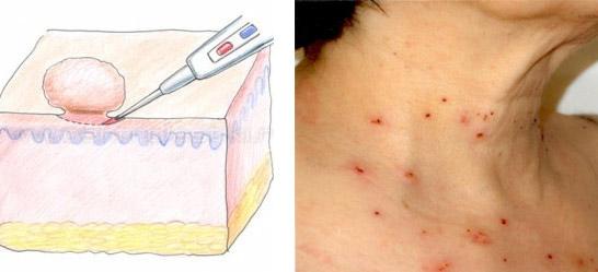 Иссечение новообразований на коже