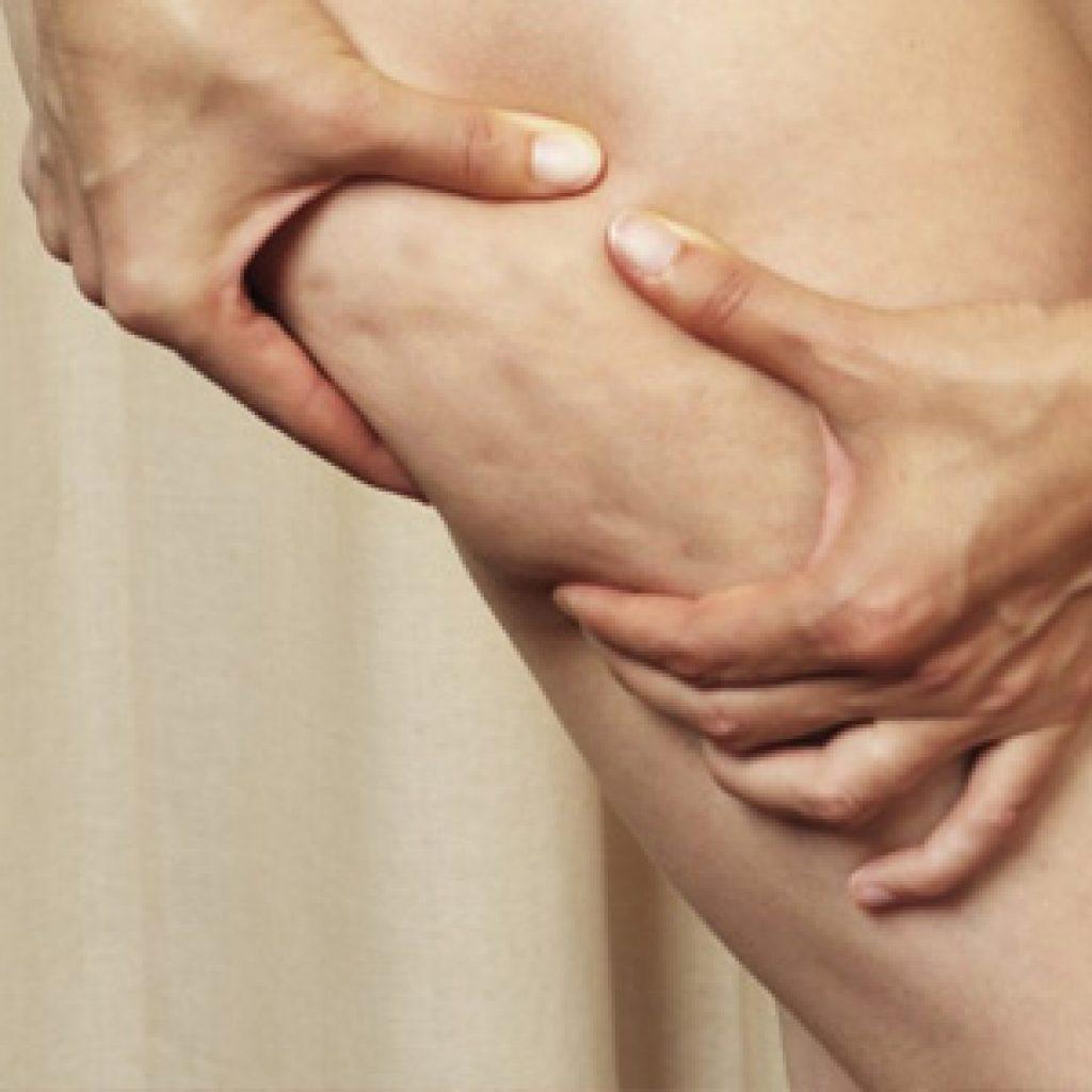 Как делать вакуумный антицеллюлитный массаж