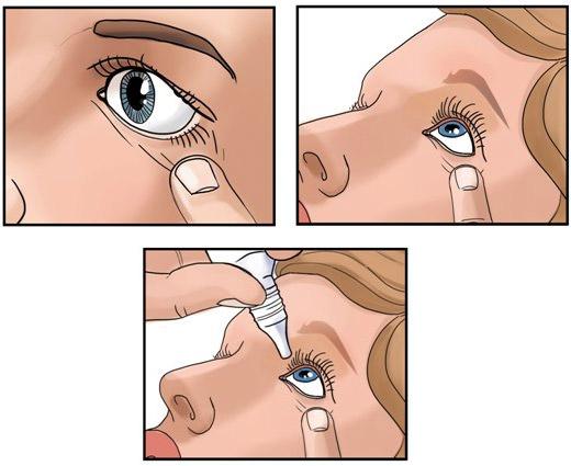 Капли для глаз противоаллергические и противовоспалительные