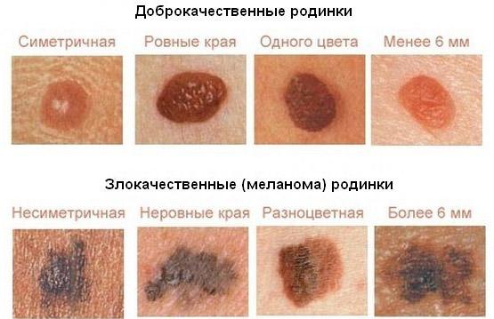 Как проявляется меланома
