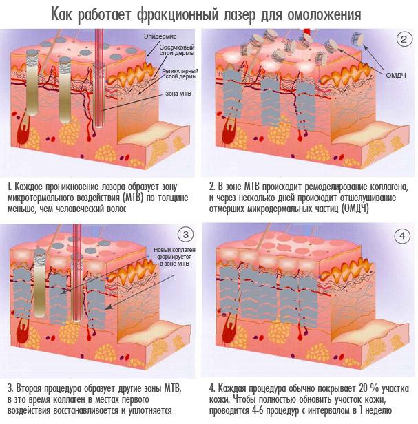 Как работает фракционный лазер