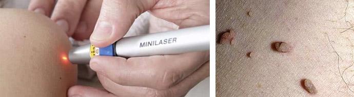 Лазер для устранения папиллом