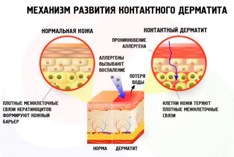 269Атопический дерматит кожа очень сухая кожа
