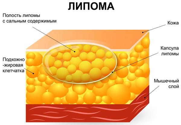 Особенности липомы