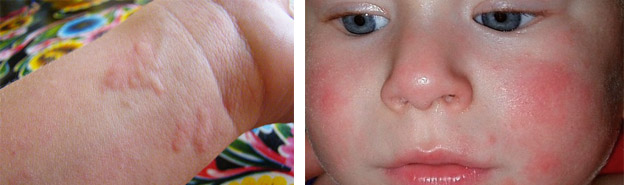 Признаки аллергии у ребенка